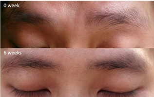 Xlash SG brows 1