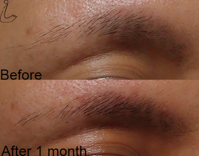 "645c58468ec ""This (Xlash) serum works like MAGIC! Before using this serum, my eyelashes  were very short and thin. After only 4 weeks, I saw a huge difference."